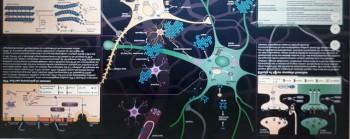 Bệnh Alzheimer: Chẩn càng sớm, trị càng hiệu quả!