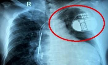 Nguy cơ đột tử vì rối loạn nhịp tim hiếm gặp
