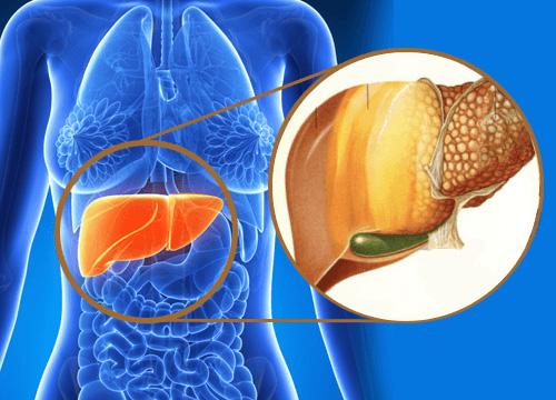 Gan nhiễm mỡ - 'Thủ phạm' gây tăng nhanh ghép gan ở người trẻ