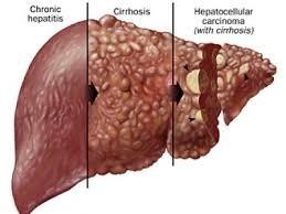 Viêm gan: nguyên nhân lớn nhất gây ung thư gan, xơ gan