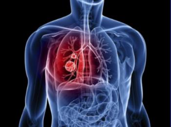 10 bác sĩ đầu ngành tư vấn miễn phí bệnh ung thư phổi