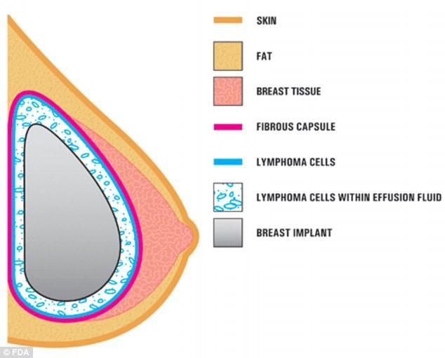 Xu hướng ung thư vú tăng do nâng ngực