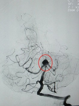 Đau đầu đột ngột, biểu hiện của bệnh lý nguy hiểm