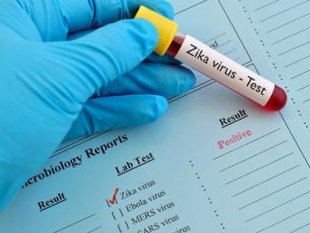 xet nghiem mien phi virus zika o 30 benh vien tp hcm